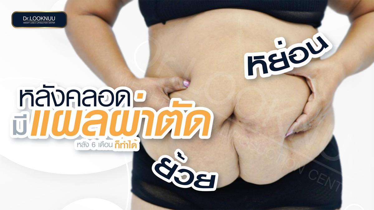 ดูดไขมัน-ท้อง-หมอลูกหนู-5